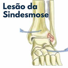 Lesões da Sindesmose