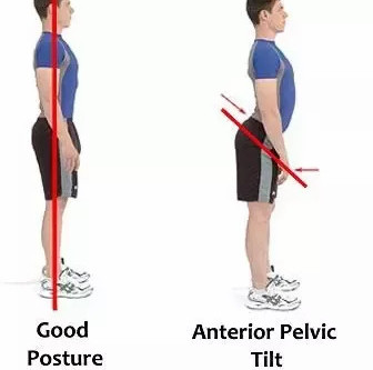 """Why Do My Hamstrings Always Feel Tight?"" - A Postural Case Study and Solution"