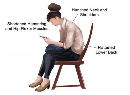 Fix Your Hunchback Posture In Less Than 10 Minutes Daily