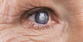 Chirurgie cataracte à Lille