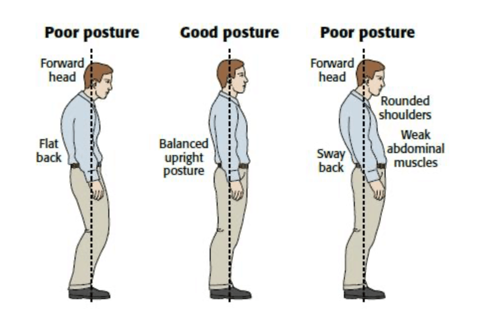What is bad posture and its symptoms