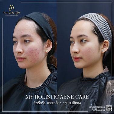 acne.jpeg