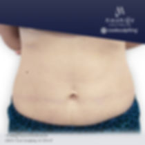 moryingclinic-after-coolsculpting.jpg