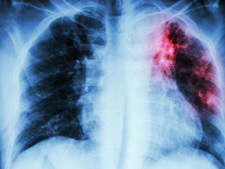 Pneumonia causada pela covid-19 pode ser silenciosa. Entenda