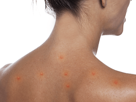 Coronavírus pode causar sintomas na pele?