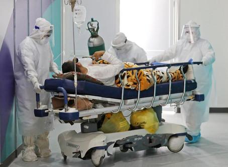 Oxigenação extracorpórea é usada em pacientes com covid-19