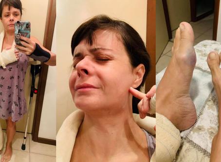 """Médica é espancada ao tentar acabar com """"festa do corona"""" de vizinhos no RJ"""