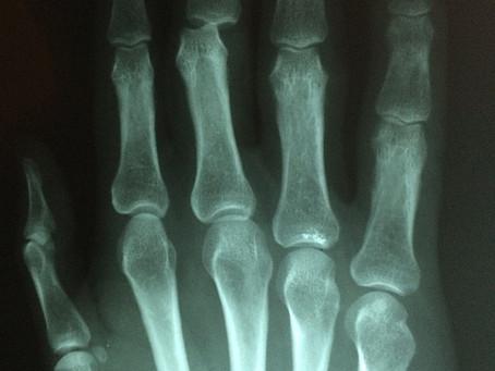 Diretrizes para prevenção de fraturas secundárias: muitos pacientes não têm recebido tratamento