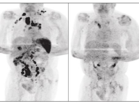 Em caso raríssimo, paciente com linfoma de Hodgkin tem remissão da doença após pegar Covid