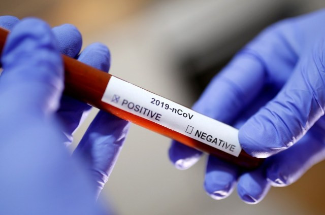 Foto ilustrativa mostra adesivo com resultado positivo para o novo coronavírus  — Foto: Dado Ruvic/Reuters/Arquivo