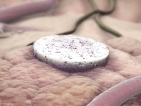 Vacina contra o câncer de mama mais agressivo tem sucesso em testes, aponta pesquisa