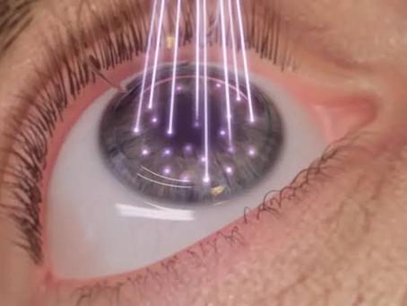 Conheça as técnicas cirúrgicas 100% a laser que dispensam utilização de óculos e lentes de grau