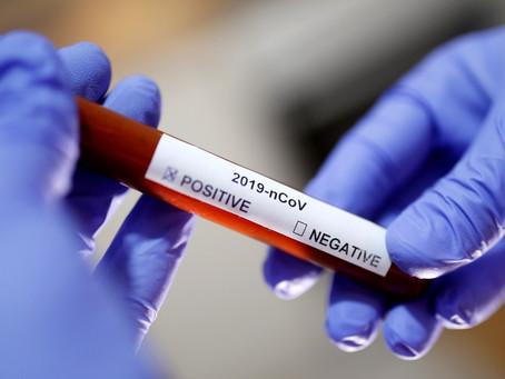 Hospital Albert Einstein desenvolve teste de covid-19 de alta precisão e detecção em larga escala