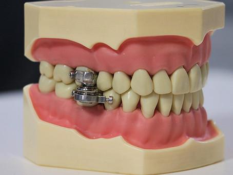 Universidade na Nova Zelândia anuncia dispositivo para perda de peso que limita a abertura da boca
