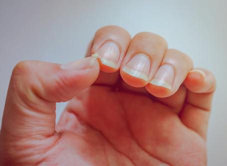 Frágil e manchada? Sinais nas unhas podem indicar problemas sérios de saúde