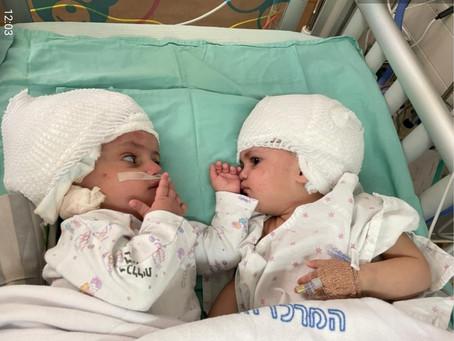 Siamesas que nasceram unidas pela parte de trás da cabeça se veem pela primeira vez após cirurgia