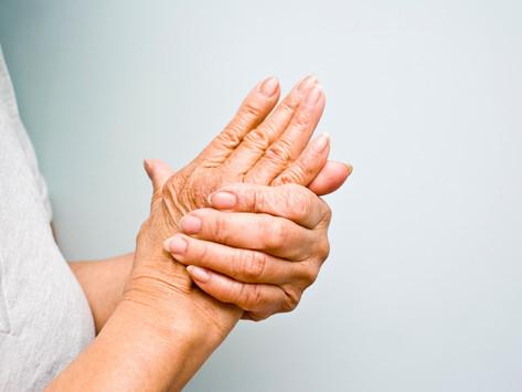 Opinião do especialista   Médico fala sobre os riscos e o tratamento da artrite reumatoide