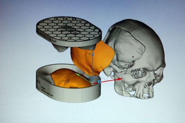 Reprodução de imagem de computador apresenta molde e colocação de prótese de cimento ósseo desenvolvida com tecnologia de custos reduzidos por equipe multidisciplinar da Fiocruz, para reconstrução craniana.