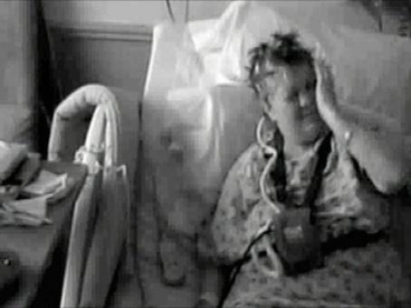 A singular condição de Karen Byrne, a mulher que era 'atacada' por sua mão esquerda