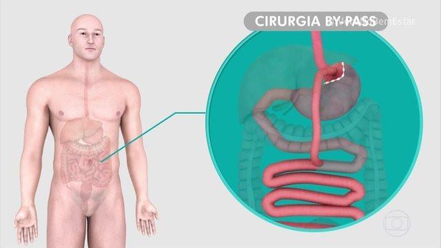 Cirurgia metabólica pode ajudar pessoas com diabetes tipo 2