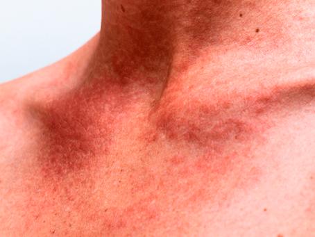 Lesão de continuidade na pele pode ser porta de entrada para bactérias