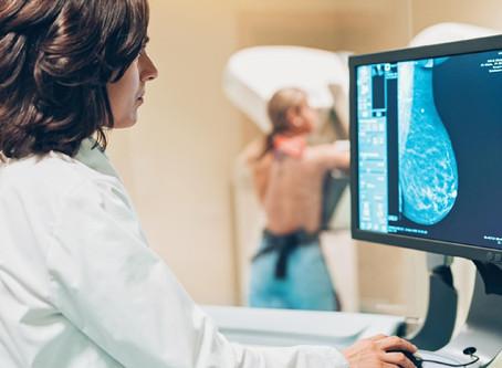 Número de mamografias despenca na pandemia e preocupa médicos