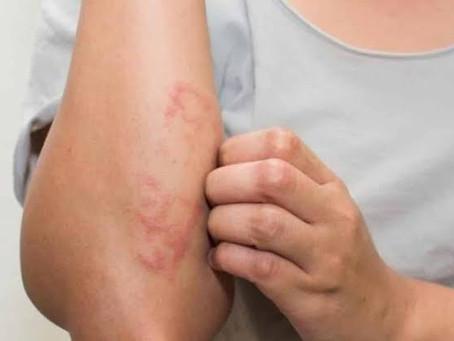 ES: mais de duas mil pessoas foram diagnosticadas com incapacitações por hanseníase