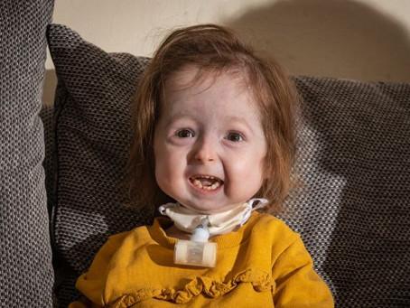 """Bebê é única pessoa no mundo a ser diagnosticada com doença rara de """"Benjamin Button"""""""