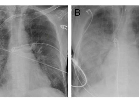 Pacientes morrem após transplantes de rim e de pulmão infectados por coronavírus, relatam estudos