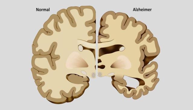 alzheimer cerebro 1400x800 0617