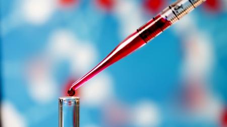 """""""Biópsia líquida"""" pode detectar complicações vasculares no diabetes?"""