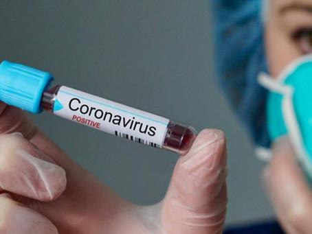 Coronavírus: Cientistas da Fiocruz testam droga contra HIV com sucesso