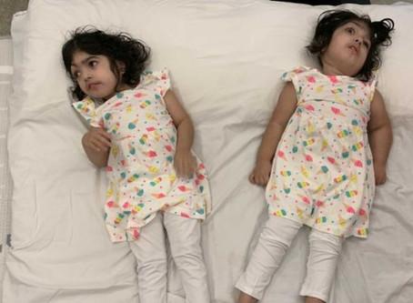 A volta para casa de gêmeas siamesas após cirurgias de separação