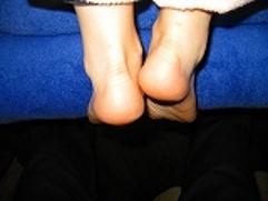 足の長さの違い-脚長差