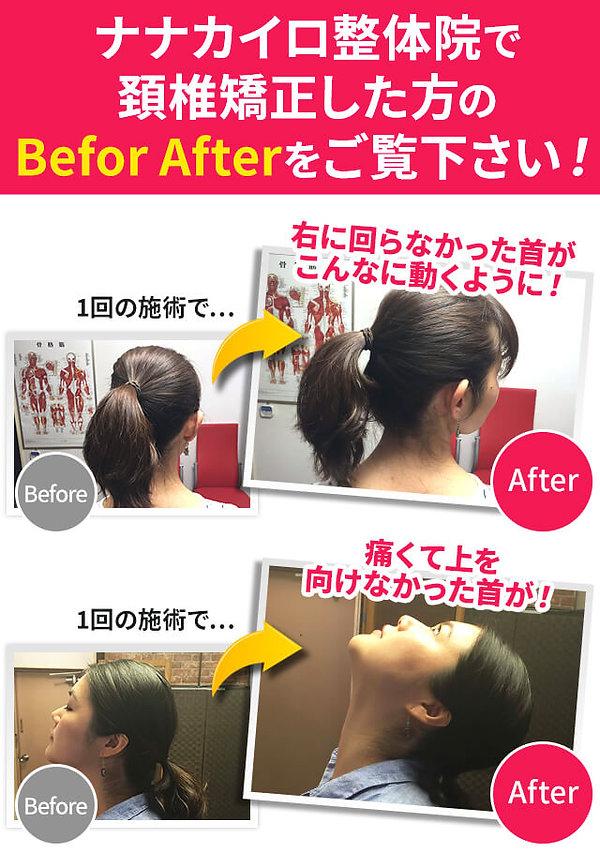 首と頚椎の矯正