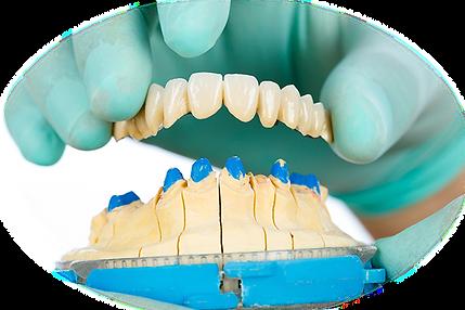 מאמר טכנאי שיניים.PNG