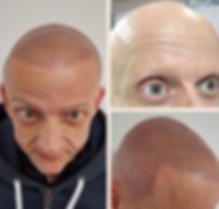 Male Scalp Tattoo For Alopecia