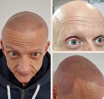 Male Scalp Tattoo For Alopecia