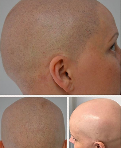 Scalp Micropigmentation Used For Female Alopecia