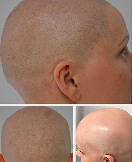 Scalp Micropigmentation used as an alopecia treatment
