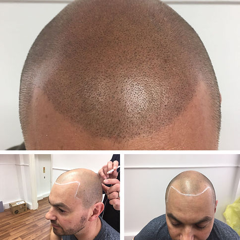 Example of Scalp Tattooing for Male Pattern Baldness