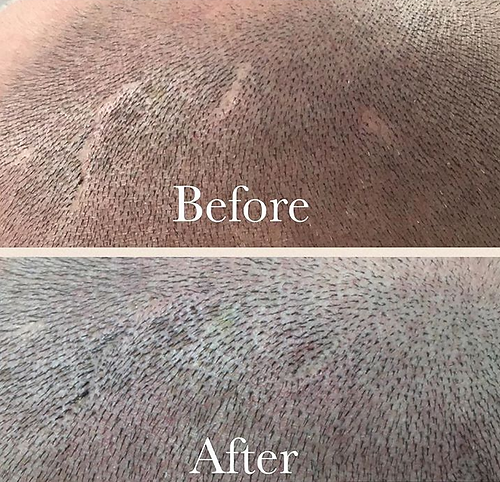 Scars Covered With Scalp Micropigmenatation