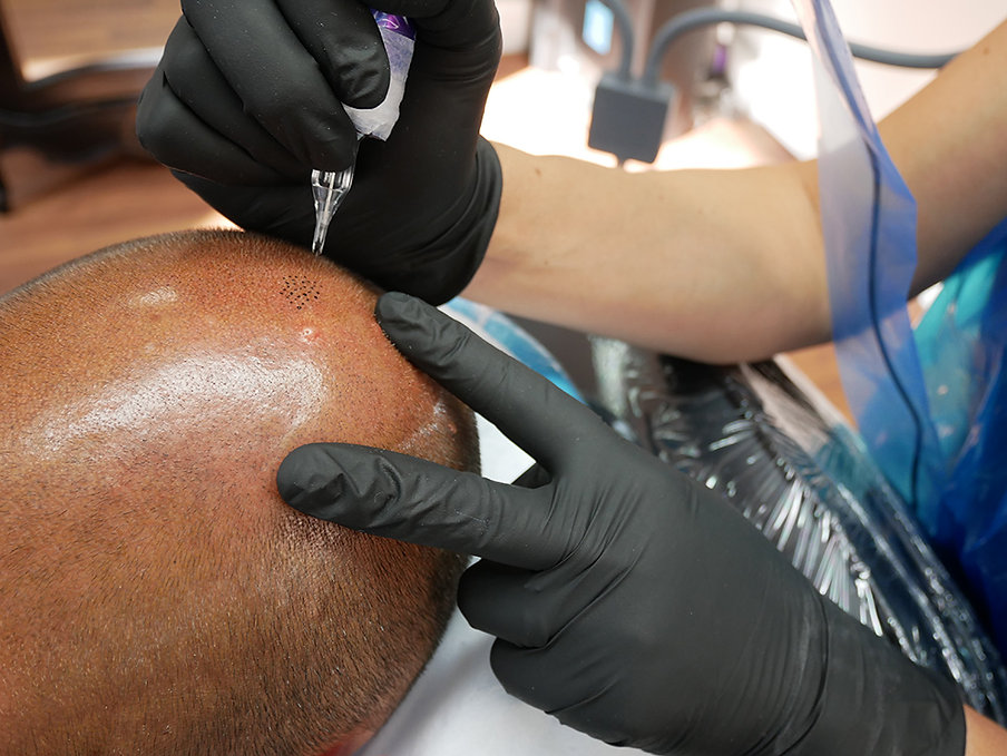The Scalp Clinic The UK'S Foremost Scalp Micropigmentation and Hair Tattoo Experts