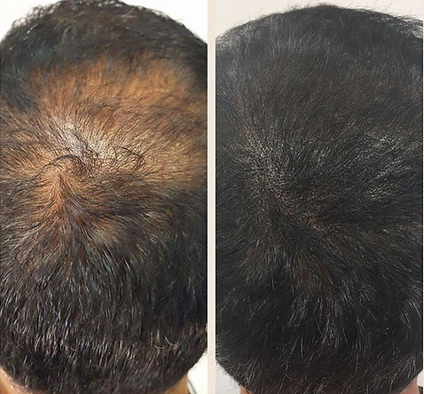 Thinning Hair Treated With Micropigmentaion