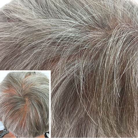 Scalp Micropigmentation On Thinning Hair