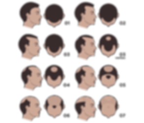 Image illustrating Types Of Hair Loss