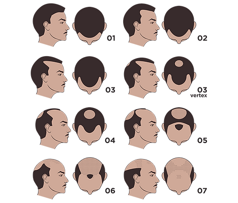 Image illustrating Types Of Hair Loss
