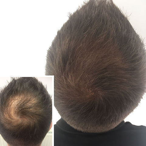 Client with Thinning Hair Before and After Micropigmentation