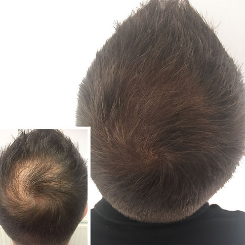 Scalp Micropigmentaion Used For Male Crown Baldness