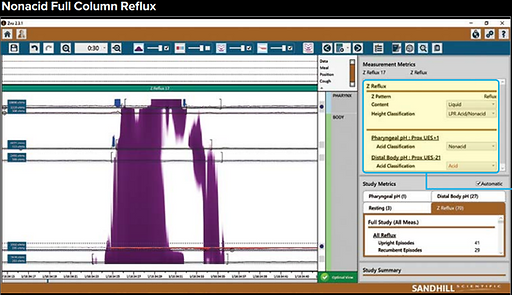 24h pH monitoring impedance graph for reflux testing.